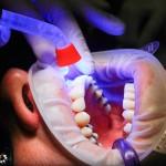 Zła dieta żywienia się to większe niedobory w zębach a również ich utratę