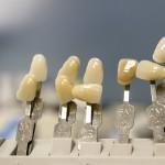 Śliczne nienaganne zęby dodatkowo olśniewający uroczy uśmiech to powód do płenego uśmiechu.