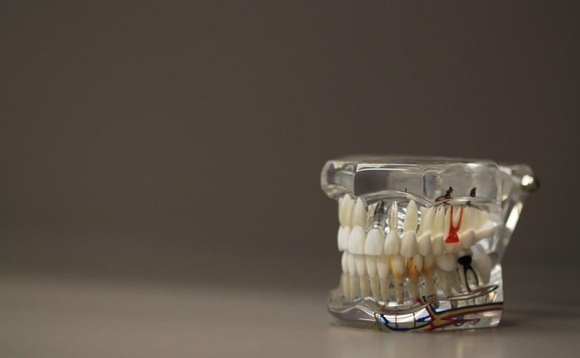 Zły sposób żywienia się to większe niedobory w ustach a dodatkowo ich utratę